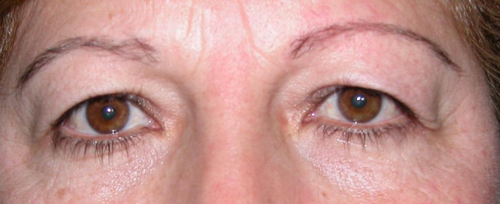 dermatocalasia