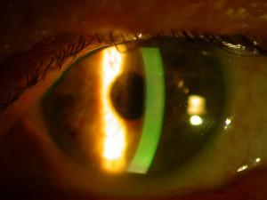 Glaucoma pigmentario 1