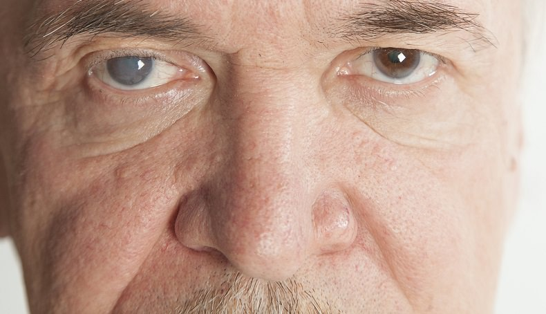 clinica oftalmologia patologias hereditarias