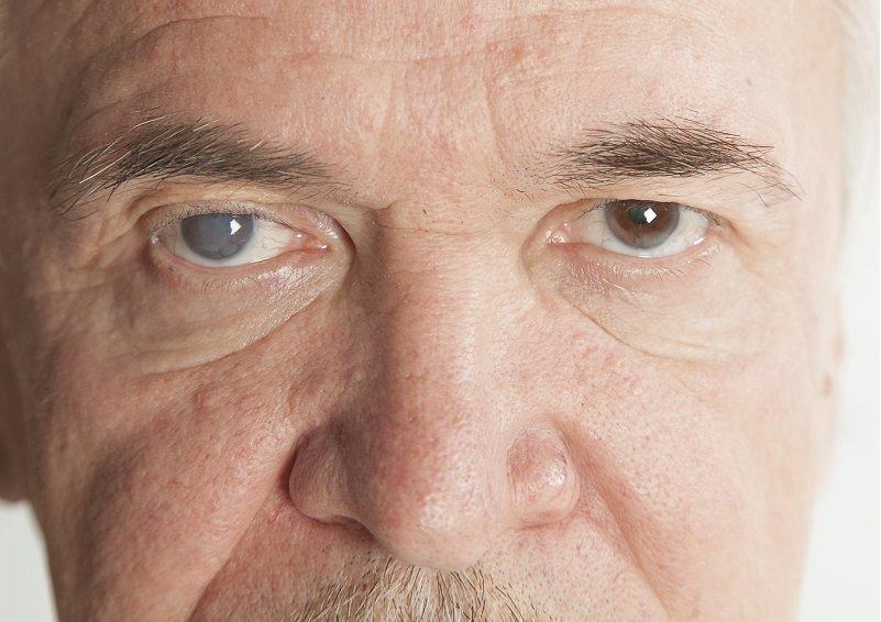 degeneración macular en la clínica oftalmológica ocumed