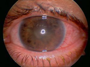 Tratamientos glaucoma Ocumed