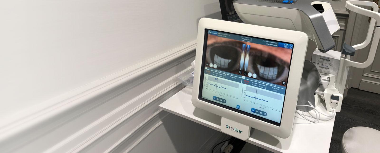 clinica-oftalmologica-lipiflow