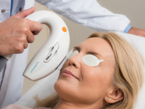 tratamiento para ojo seco