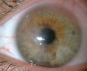 Enfermedades más comunes de la córnea