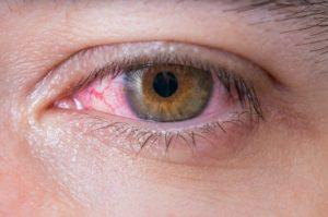 Cosméticos y el ojo seco