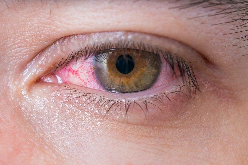 ¿Cómo afectan los cosméticos al ojo seco?