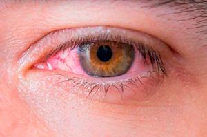 Remediar los problemas oculares cómo los ojos rojos por el teletrabajo