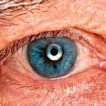 Tipos de degeneraciones corneales