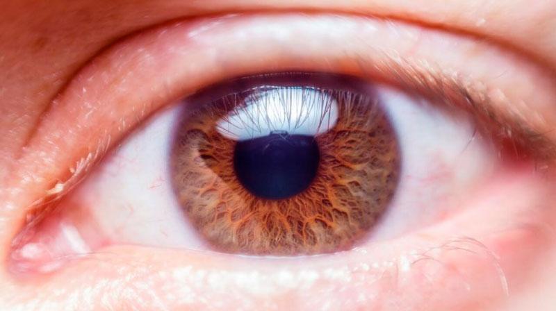 Queratocono: enfermedad degenerativa de la córnea