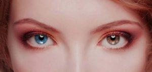 por qué tengo ojos de diferente color