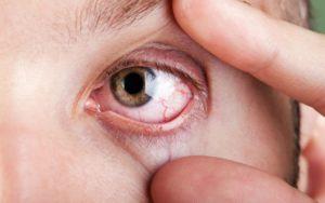 alergia y ojo seco