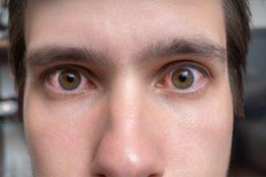 diferencia entre alergia y ojo seco