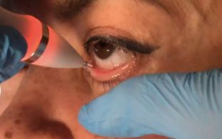 tratamiento efectivo ojo seco y blefaritis