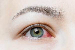 ¿Qué es la alergia ocular?