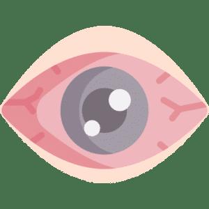 Enrojecimiento causado por alergia en los ojos